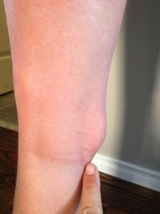 Story mosquito bite